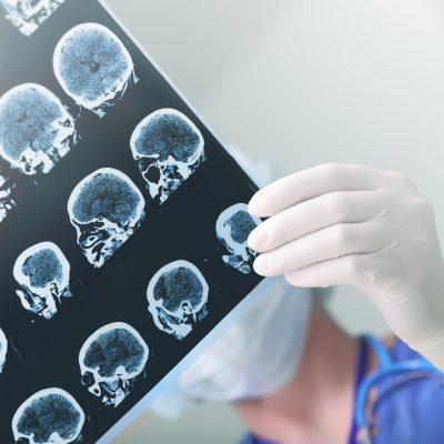 Farmaco contro l'Alzheimer, nello studio anche un'equipe di Tricase
