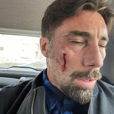 Aggressione all'inviato di Striscia, Vittorio Brumotti: due persone arrestate a San Severo